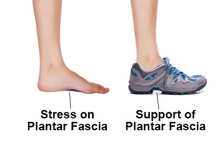Best Plantar Fasciitis Running Shoes