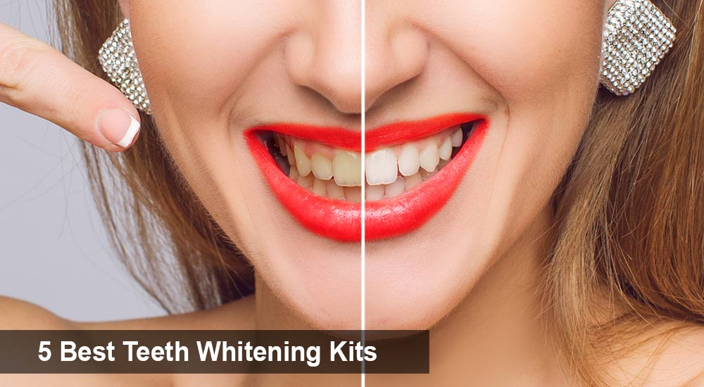 5 Best Teeth Whitening Kits