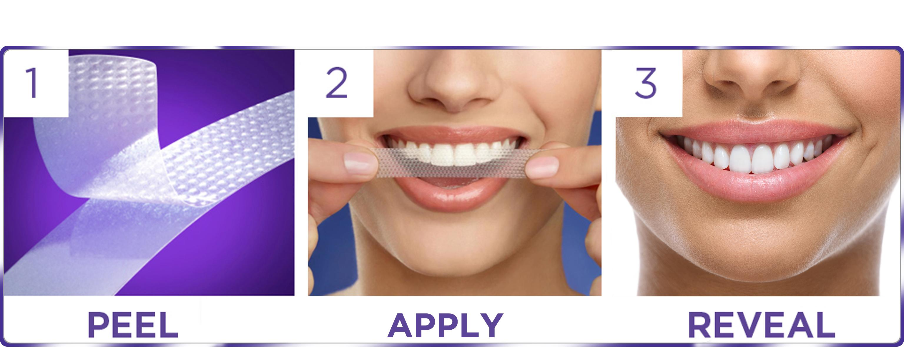 5 Best Teeth Whitening Kits Of 2020 The Smartest Buyer