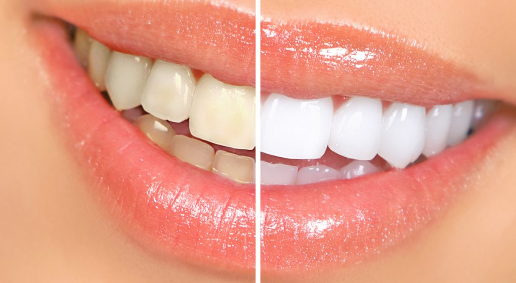5 best teeth whitening kits of 2017 the smartest buyer at some point in your life you will find yourself wanting whiter teeth and youll find yourself searching for the best teeth whitening kit solutioingenieria Image collections